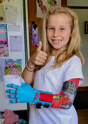 Loias with her 3D-printed hand